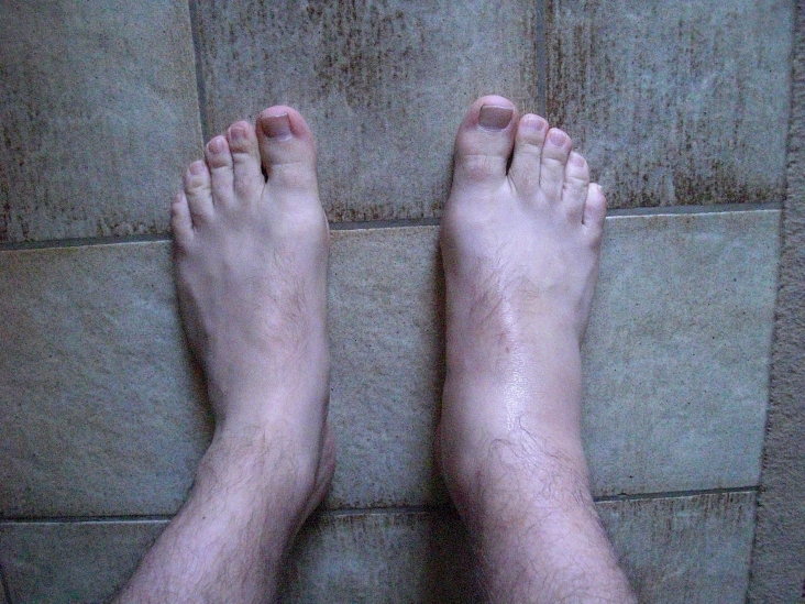 Now that is a cankle :(